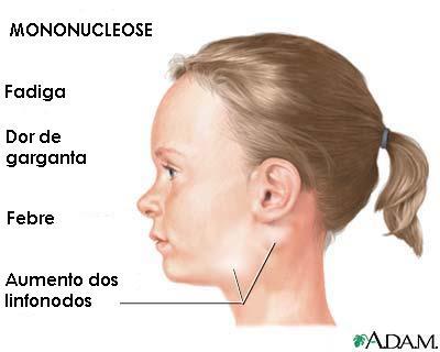 Mononucleose - sinais e sintomas