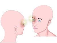 Dor de cabeça - cefaléia em salvas