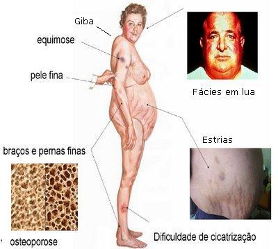 Efeitos colaterais dos corticoides