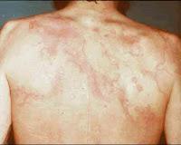 Eritema marginato da febre reumática