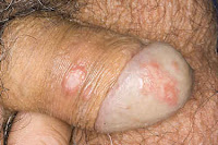 Herpes genital em homens