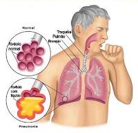 pneumonia sintomas