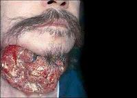 Cigarro - câncer de boca
