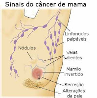 cncer de mama - sintomas