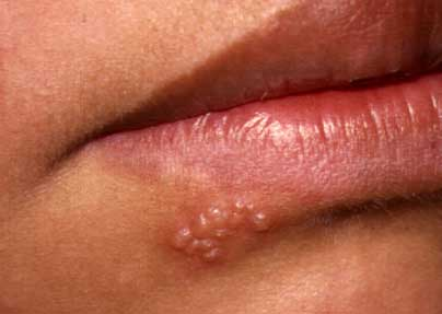 herpes ii and oral sex
