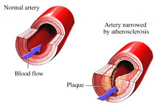coronary arteries of the heart angiogram pictures