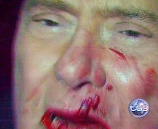 aggressione, Berlusconi, volto sanguinante