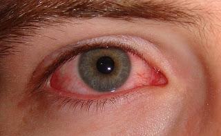 Tips Menghindari Mata Lelah Di Depan Monitor