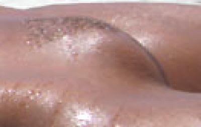 Vulva Picture178
