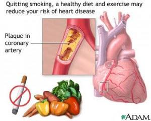 Stop Smoking NOW!