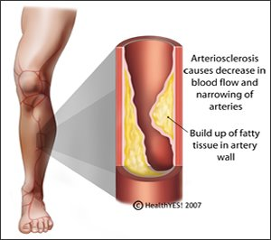 Arteriosclerosis