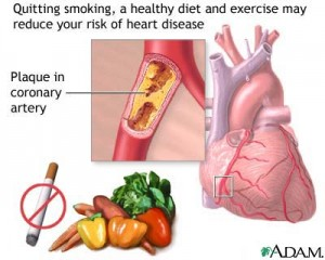 Stop Heart Disease