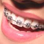 http://1.bp.blogspot.com/_prGZ_2kJaws/Skf99HovyiI/AAAAAAAAAUM/24oYnkTaLhI/s200/ortodontia-140x140.jpg