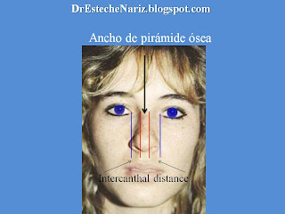 modelo+1+ +copia+%25283%2529 EXAMEN GENERAL DE NARIZ Y CARA | Rinoplastia | Part 5 | Kosmetische Nasenoperation | Rhinoplasty | parte 5 | General Examination Of The Nose And The Face