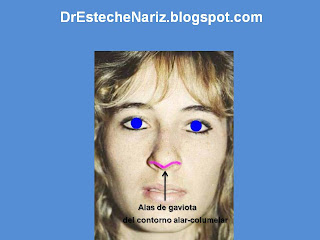 modelo+1+ +copia+%25285%2529 EXAMEN GENERAL DE NARIZ Y CARA | Rinoplastia | Part 5 | Kosmetische Nasenoperation | Rhinoplasty | parte 5 | General Examination Of The Nose And The Face