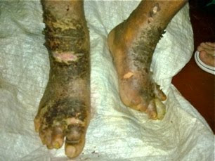 Leprosy is a deforming disease