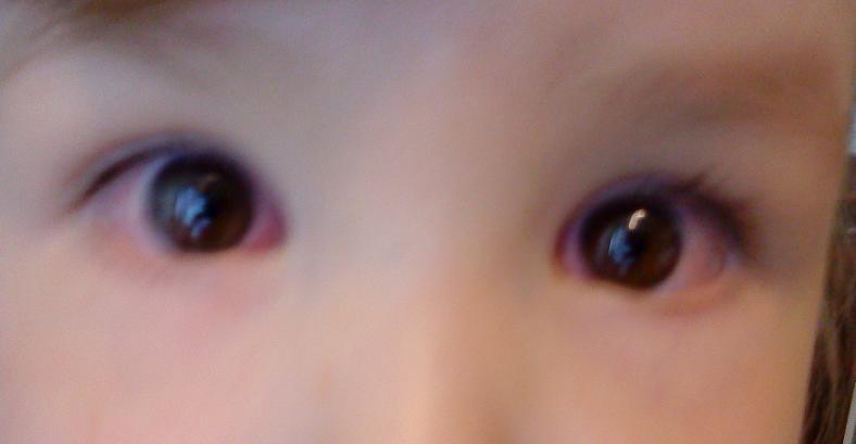 lapsen silmätulehdus