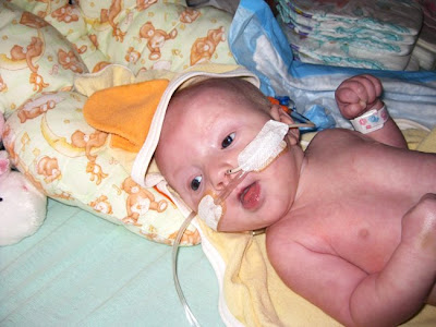 Baby Kaylee-heart donor
