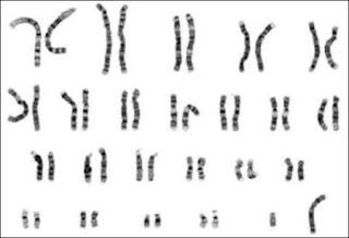 Cariotipo exame