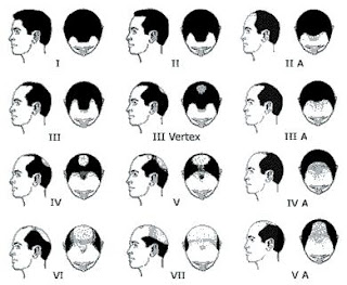 Cure against baldness: Norwood-Hamilton Scale of Male Pattern Baldness