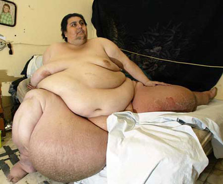 worlds most obese person