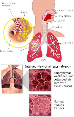 Nursing Care Plan COPD Exacerbation http://karlheinzfeldhaus.girlshopes.com/copdnursingcareplans/