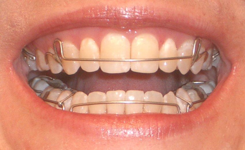 выравнивание зубов винирами фото