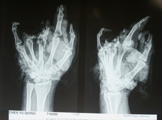 The xray is