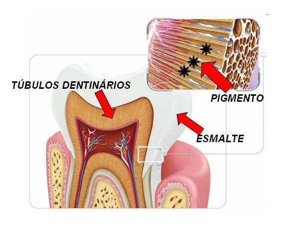 Jm Odontologia Clareamento A Laser Nao Existe