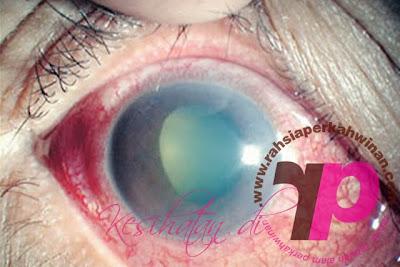 Gaukoma boleh menyebabkan buta | Health care, kesihatan, disease, medicine, MALAYSIA