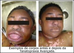 EFEITOS DA TANATOPRAXIA