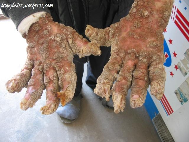 El hongo que comienza sobre las uñas el tratamiento