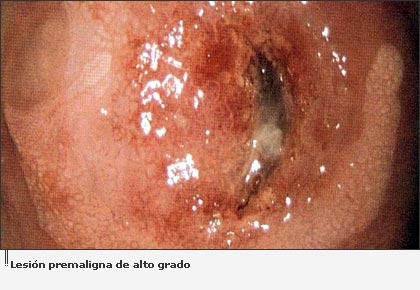 Cáncer de cuello uterino - National Cancer Institute