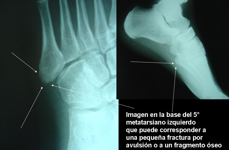 traumatolog a deportiva infantil fracturas del quinto