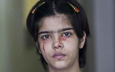 http://1.bp.blogspot.com/_rlTOI_eC7dY/SOcvbQ96mkI/AAAAAAAACSw/xB--ArvFUOw/s400/460-blood-girl1_1001140c.jpg
