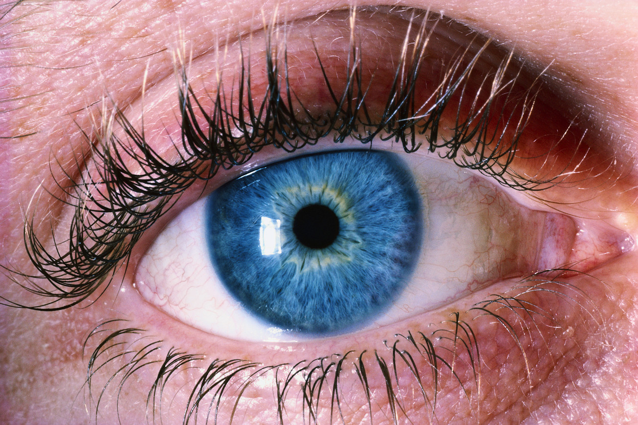 Lack Of Vitamin A Can Cause Night Blindness Pernyakit Xerophthalmia And Cornea Softing Manifestations Is Blurred Vision In The Light Rather Dim