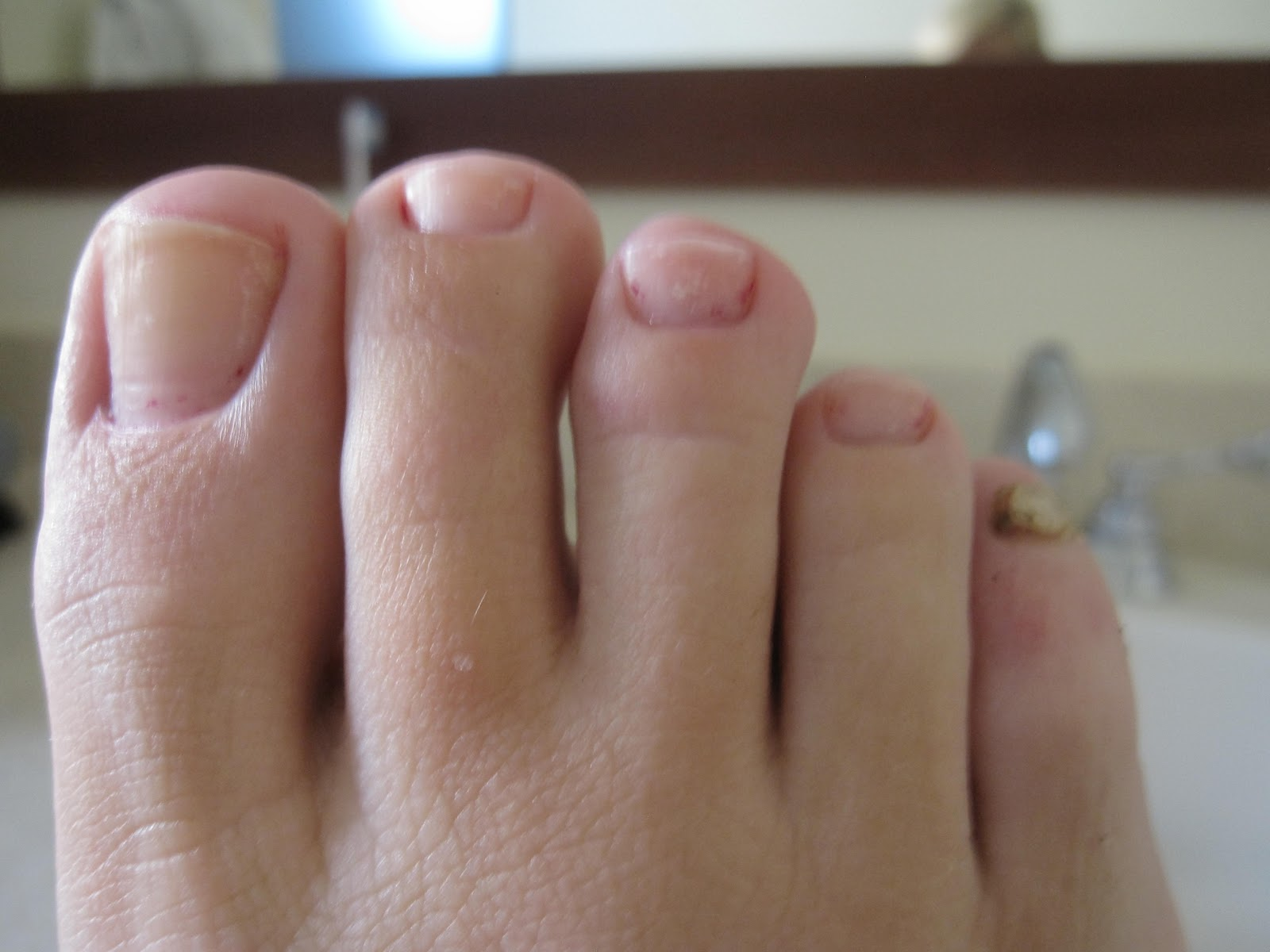 A Lady Reveals Nothing: RIP, Pinky Toenail