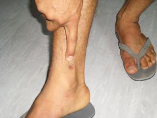 Cicatrice sulla caviglia