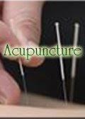 Acupuncture ( Akupuntur )