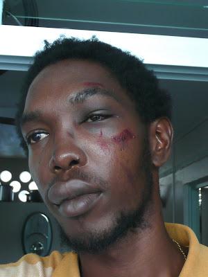 Guadeloupe : bavure du RAID dans Guadeloupe