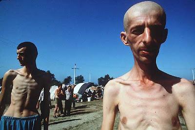 external image Bosniaks+Muslims+in+Trnopolje+Concentration+Camp.jpg