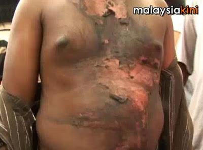 B Prabakar boiling water victim
