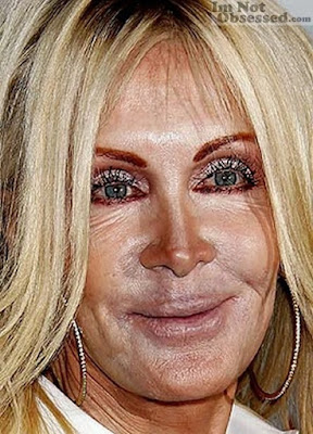 Joan Van Ark face surgery