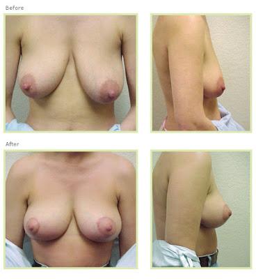 mastopexy breast lift