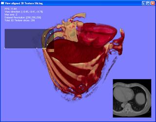 GPU volume rendering recent stuff liver dataset
