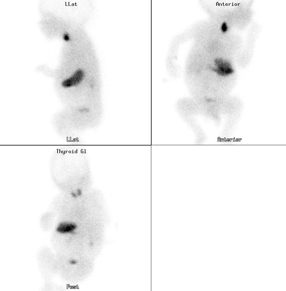 Thyroid scintigraphy