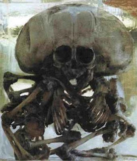 Siamese Twins Skeleton images pictures pics photos gallery