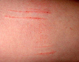 Scratches from my Cat