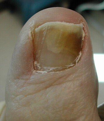 nail fungus you may have strong and healthy nails but