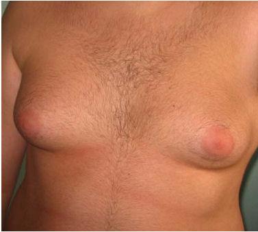 A esposa depois de aumento em um peito